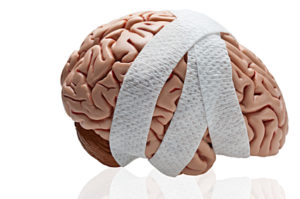 Image result for bandaged brain